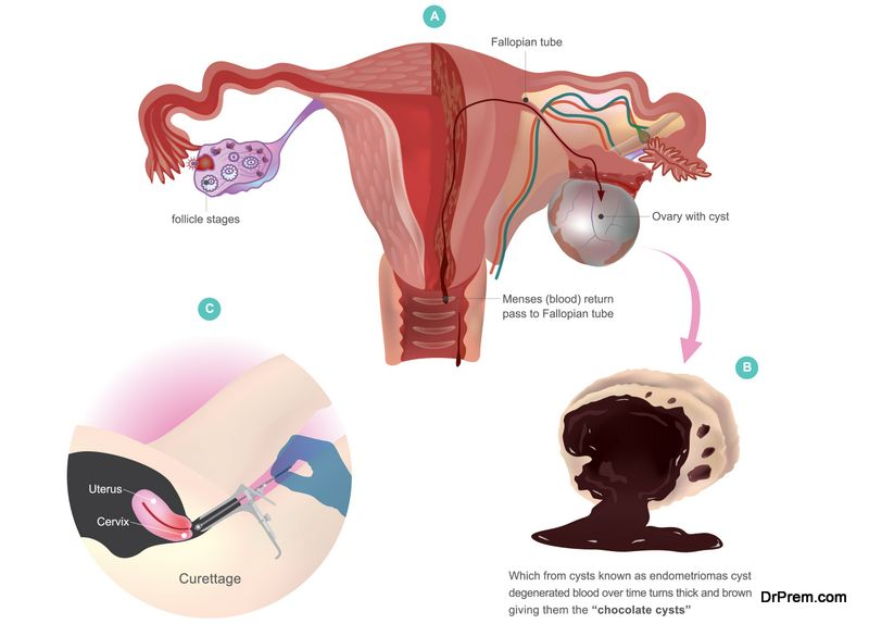Prevent Ovarian Disease